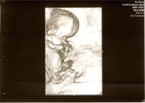 10w6d 妊娠10週6日 エコー写真 3D