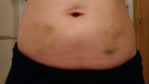 不育症 妊娠14週 ブログ ヘパリン 注射跡 ヘパリン注射跡